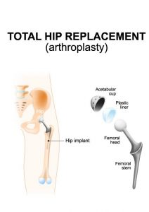 Why Is Incontinence After Hip Replacement Surgery So Common?